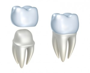 CEREC Dental Crowns In Newport News