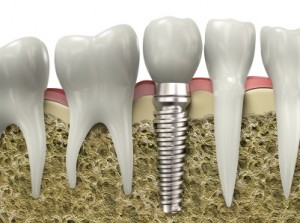 Hampton Dental Implants