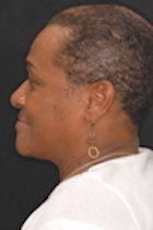 Patient 3 weeks after getting The Denture Fountain of Youth® denture system near Hampton Roads.