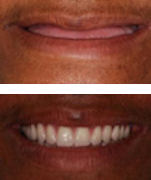 Before and After The Denture Fountain of Youth® - closeup