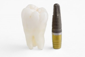 Dental Implants at Port Warwick Dental Arts