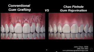 Close up showing how conventional gum grafting works vs. the pinhole surgical technique offered by Dr. Samaha in Newport News.