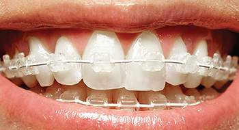 Close up of Six Month Smiles braces available to patients in Newport News and Hampton Roads.